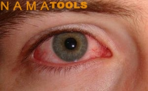 نمونه چشم آسیب دیده در اثر جوشکاری
